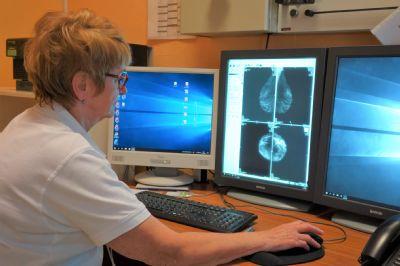 Levočská nemocnica upozorňuje na dôležitosť preventívnych mamografických vyšetrení