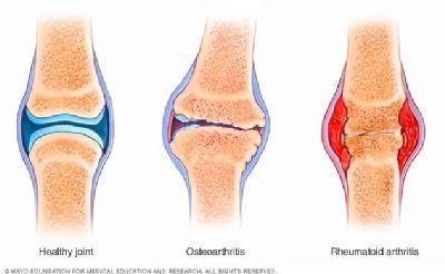 12. október je Svetovým dňom artritídy Záludná choroba napáda pohybový aparát,  jej príčinu zatiaľ nepoznáme